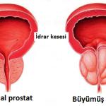 iyi huylu prostat büyümesi