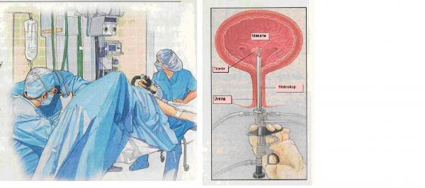 meshane kanseri tedavisi